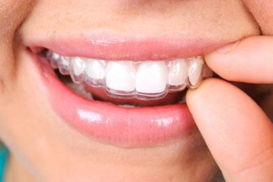 Orthodontie de l'adulte - Cabinet Dentaire du Pays Blanc - Saint Molf guérande